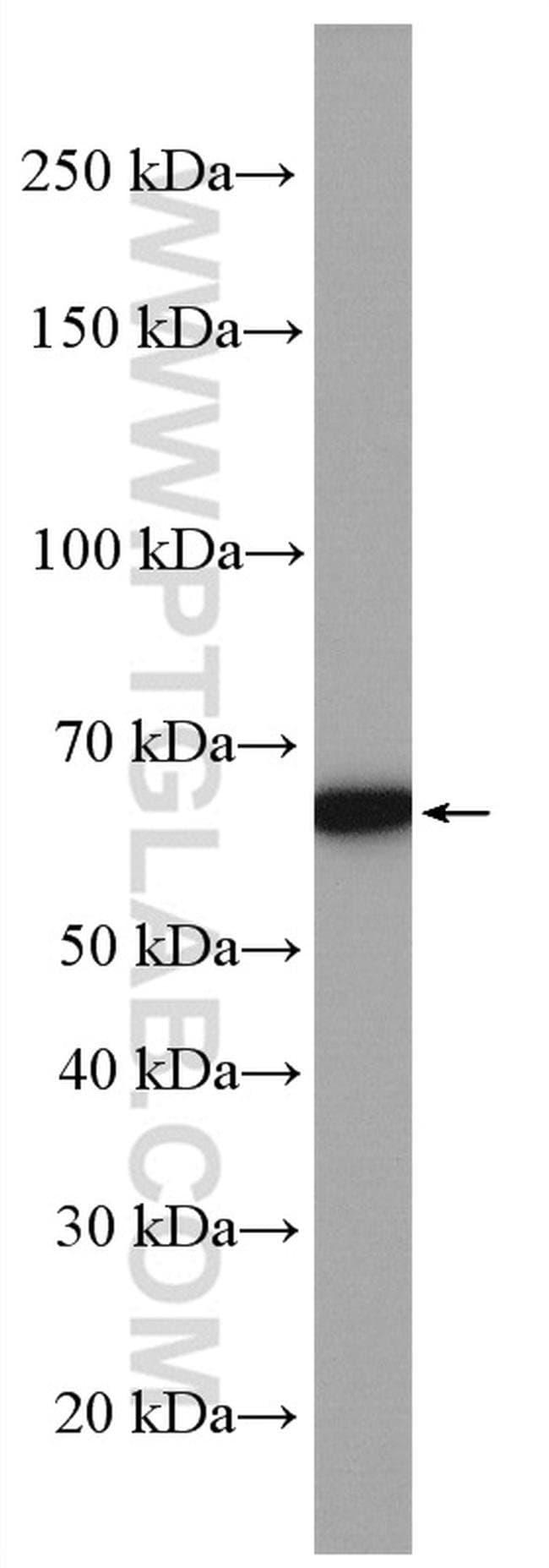 SLC25A12 Rabbit anti-Human, Mouse, Polyclonal, Proteintech 150 μL; Unconjugated Ver productos