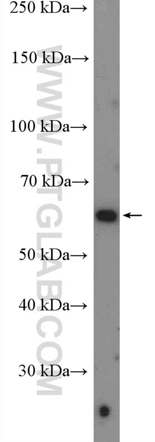 FLVCR1 Rabbit anti-Human, Mouse, Polyclonal, Proteintech 20 μL; Unconjugated Produkte