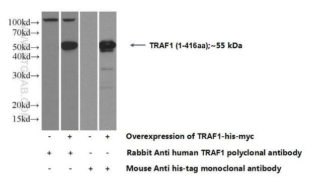TRAF1 Rabbit anti-Human, Polyclonal, Proteintech 20 μL; Unconjugated voir les résultats