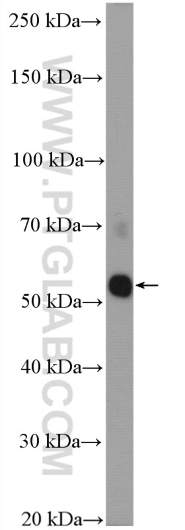 TRAF2 Rabbit anti-Human, Polyclonal, Proteintech 150 μL; Unconjugated Ver productos