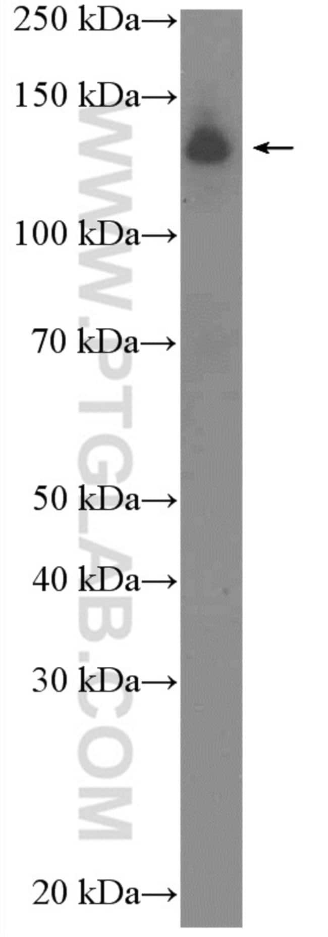 RFX1 Rabbit anti-Human, Polyclonal, Proteintech 20 μL; Unconjugated Produkte
