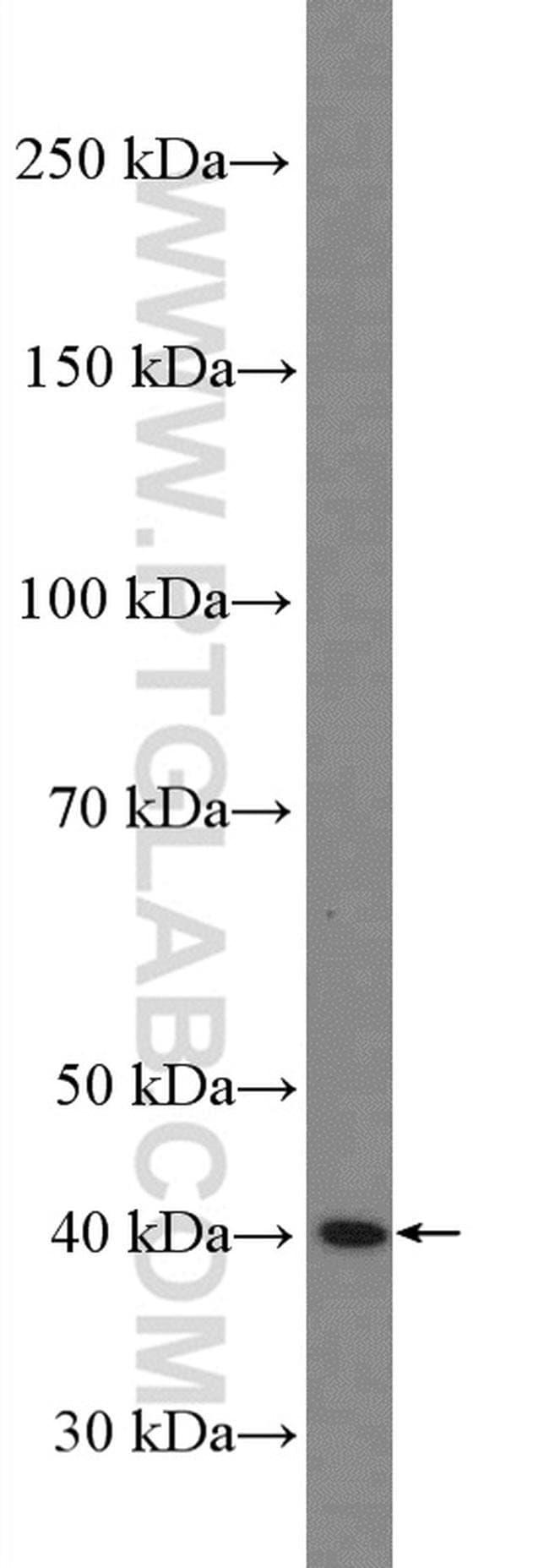 xCT Rabbit anti-Human, Mouse, Polyclonal, Proteintech 150 μL; Unconjugated Ver productos