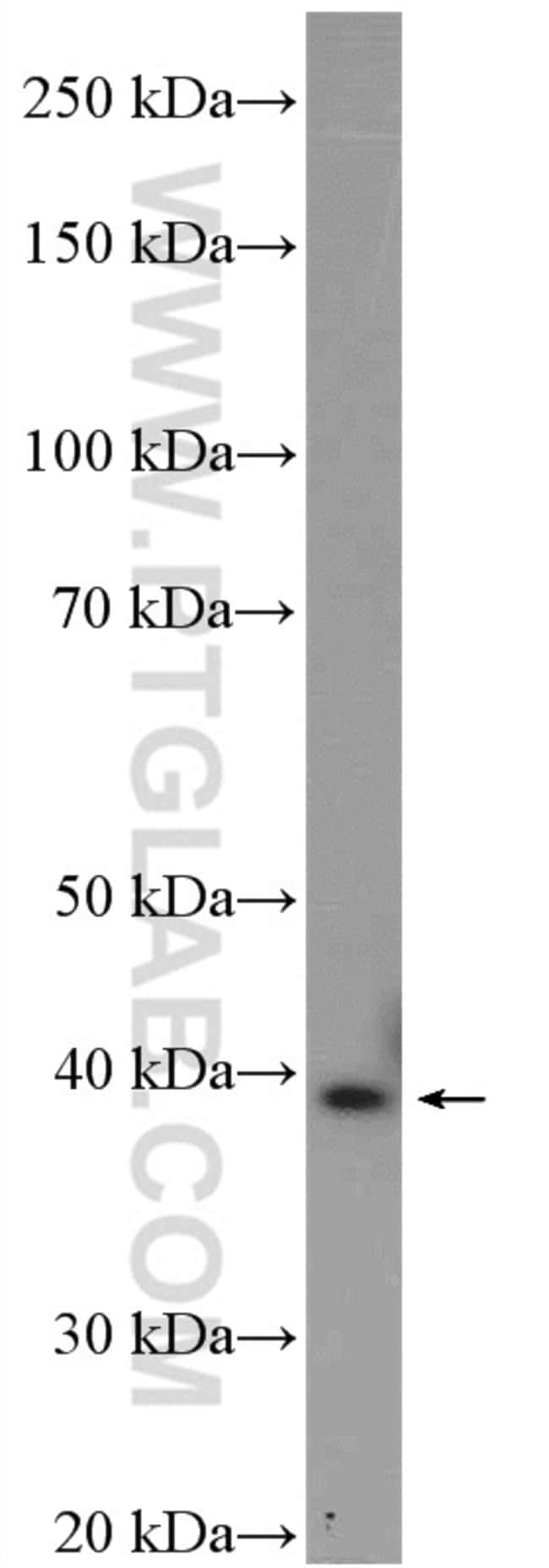 AMPK beta 1 Rabbit anti-Human, Mouse, Polyclonal, Proteintech 20 μL; Unconjugated voir les résultats