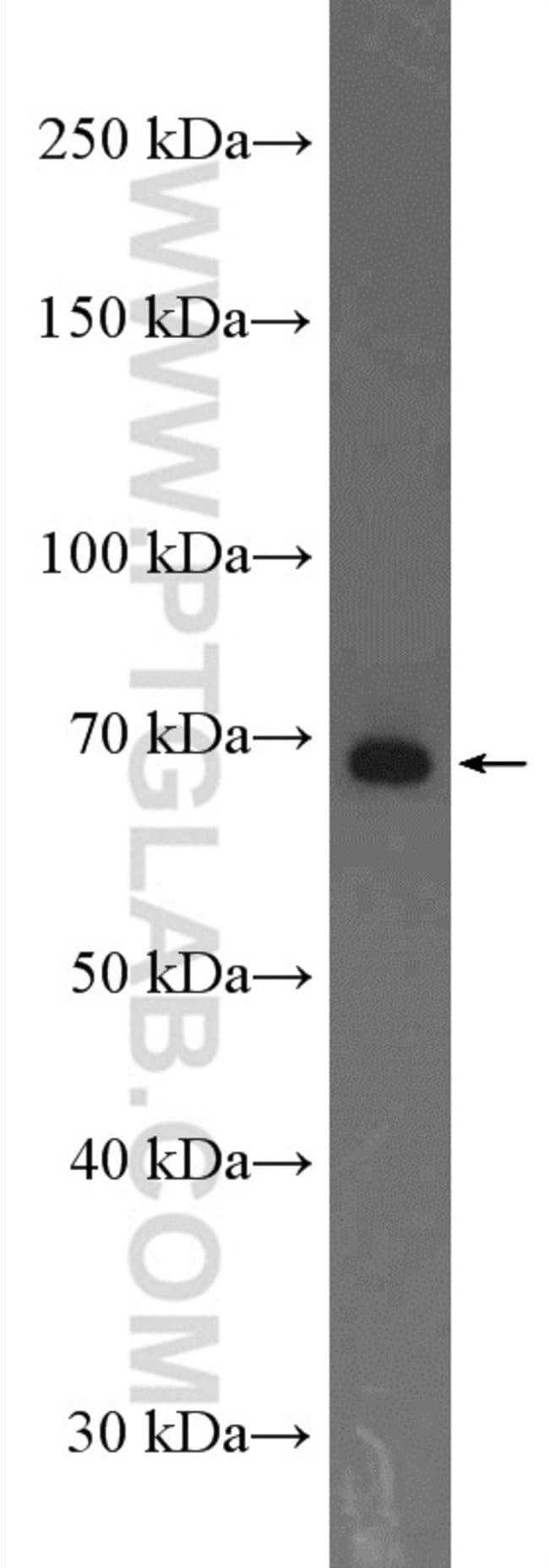 ADAM12 Rabbit anti-Human, Mouse, Rat, Polyclonal, Proteintech 20 μL; Unconjugated voir les résultats