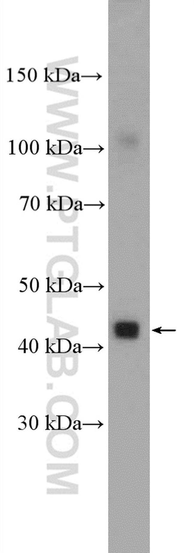 MCT14 Rabbit anti-Human, Mouse, Porcine, Polyclonal, Proteintech 150 μL; Unconjugated Ver productos