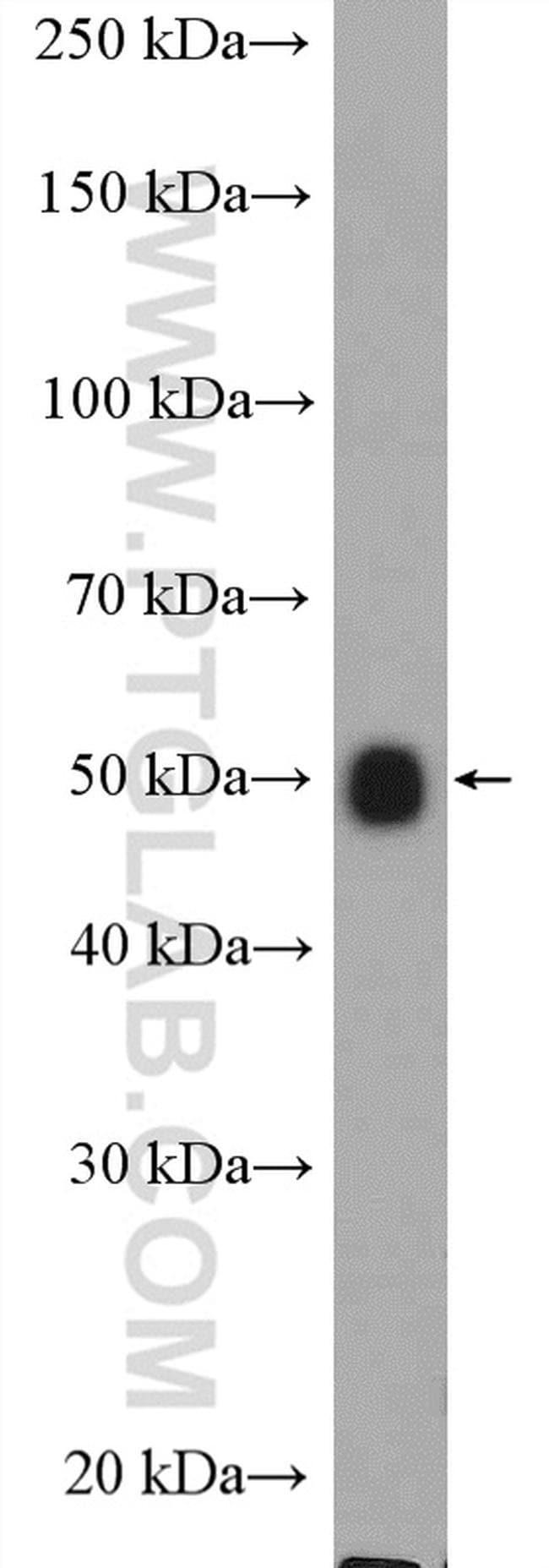 ALG11 Rabbit anti-Human, Mouse, Rat, Polyclonal, Proteintech 20 μL; Unconjugated voir les résultats