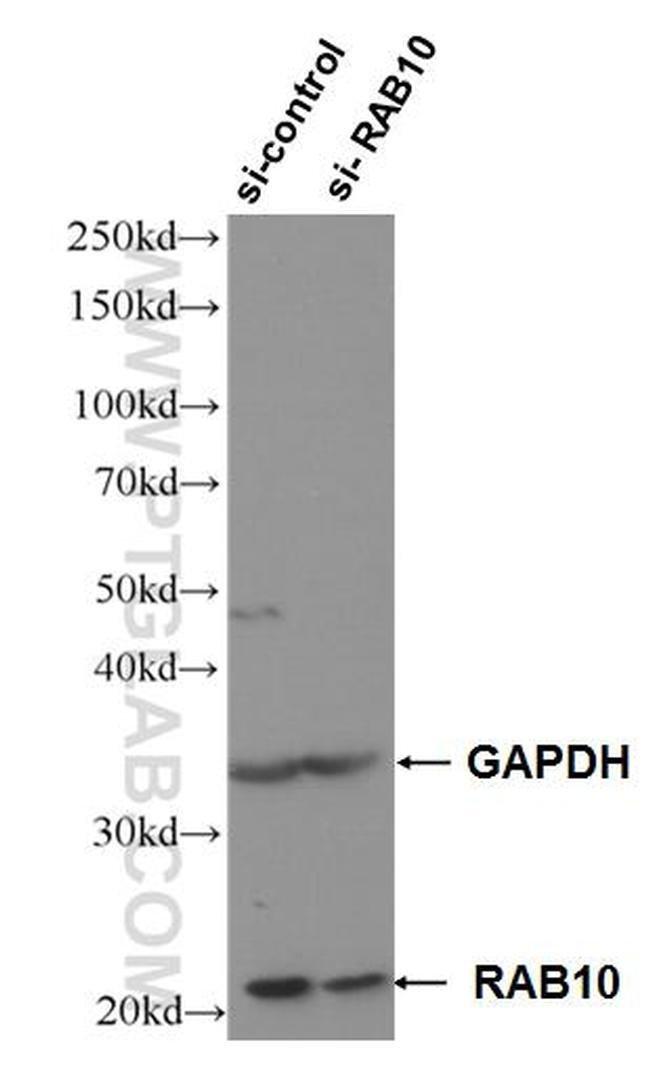 RAB10 Rabbit anti-Human, Polyclonal, Proteintech 150 μL; Unconjugated Ver productos