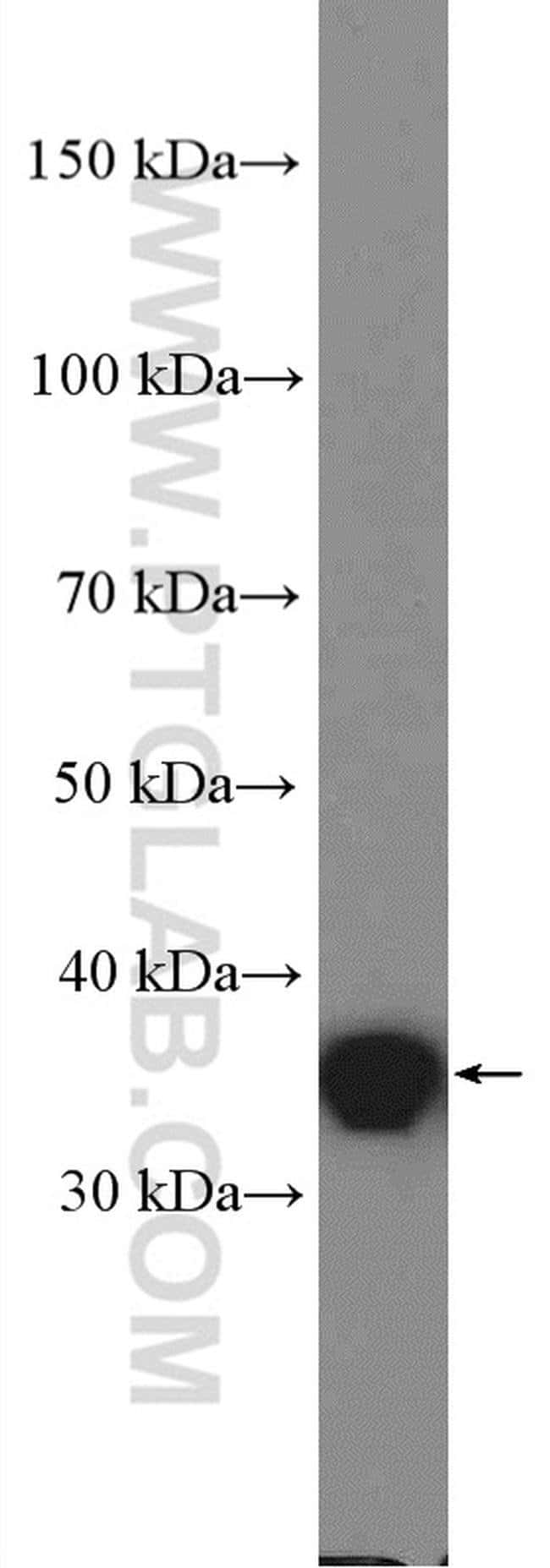 PSRC1 Rabbit anti-Human, Polyclonal, Proteintech 20 μL; Unconjugated Produkte