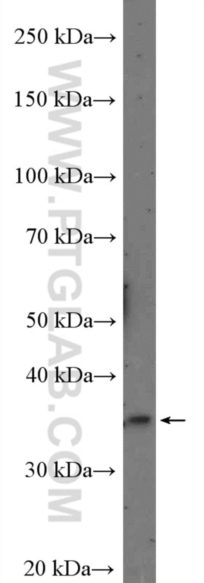 MSI1 Rabbit anti-Human, Polyclonal, Proteintech 20 μL; Unconjugated Produkte