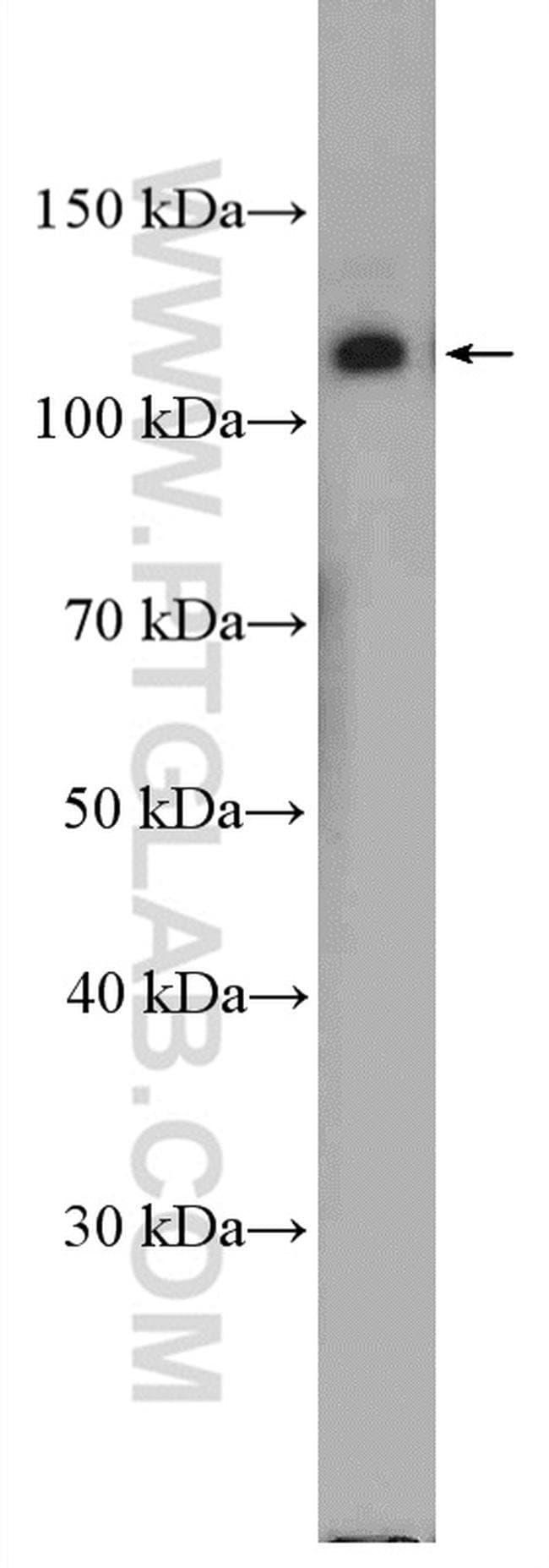 Integrin alpha-6 Rabbit anti-Human, Polyclonal, Proteintech 150 μL; Unconjugated Ver productos