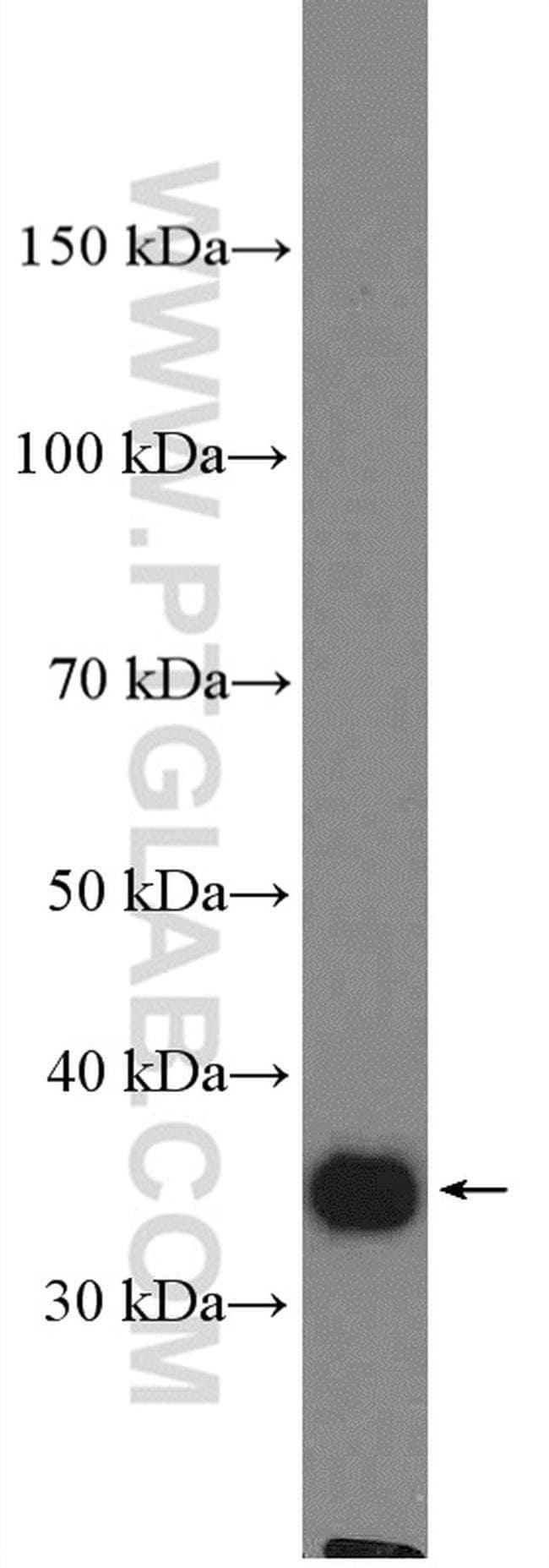 LRRC59 Rabbit anti-Human, Mouse, Polyclonal, Proteintech 20 μL; Unconjugated voir les résultats