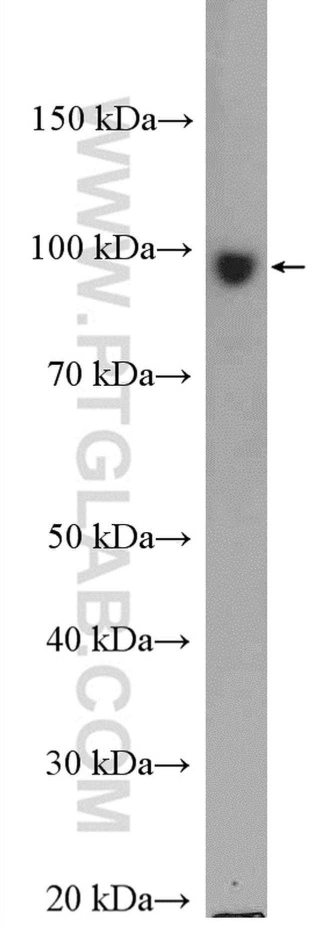 KIF2A Rabbit anti-Human, Mouse, Polyclonal, Proteintech 20 μL; Unconjugated voir les résultats