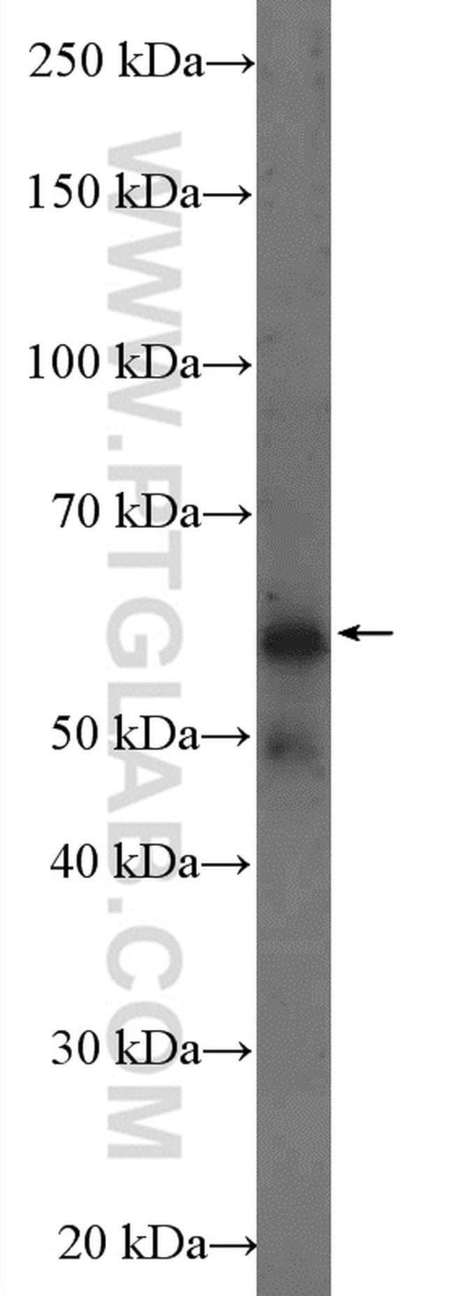 FTO Rabbit anti-Human, Mouse, Polyclonal, Proteintech 20 μL; Unconjugated Produkte
