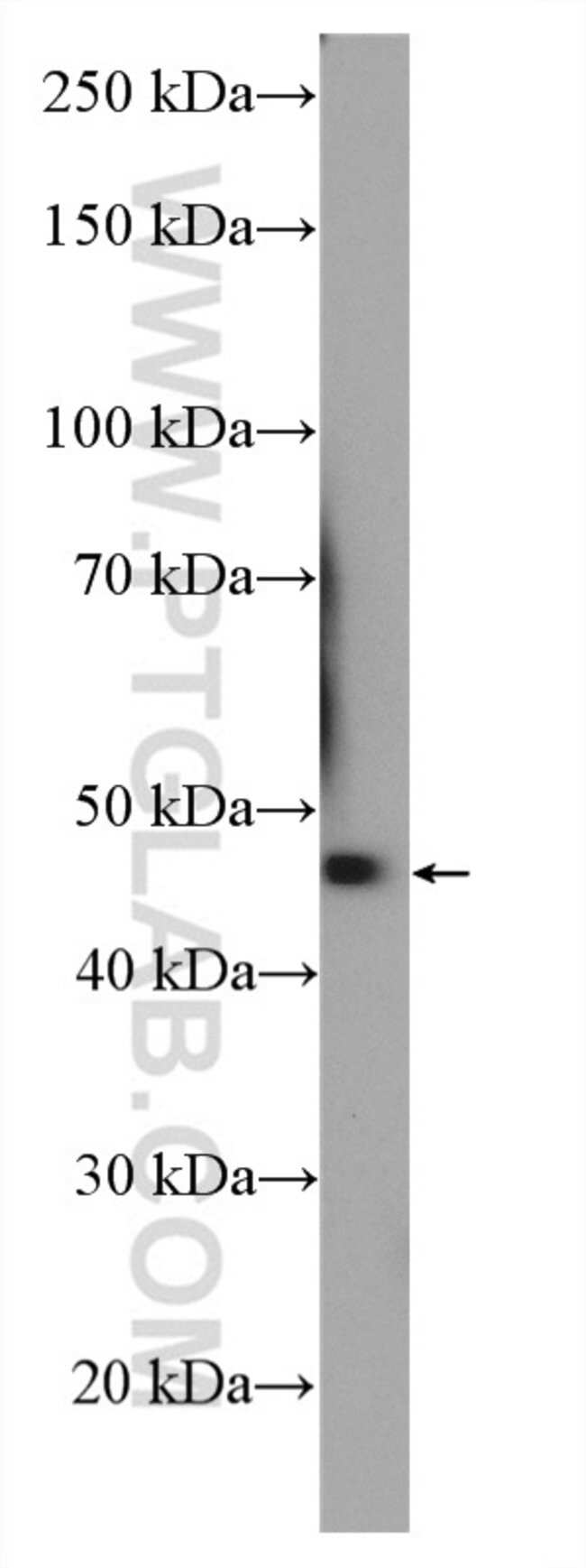 KLHDC1 Rabbit anti-Human, Mouse, Rat, Polyclonal, Proteintech 150 μL; Unconjugated Ver productos