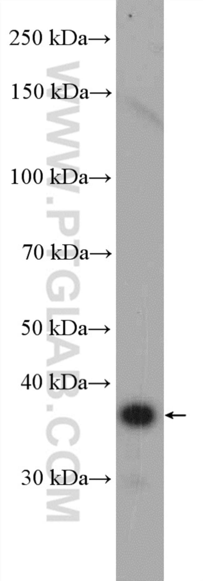 PPP1R3B Rabbit anti-Human, Mouse, Polyclonal, Proteintech 20 μL; Unconjugated Produkte