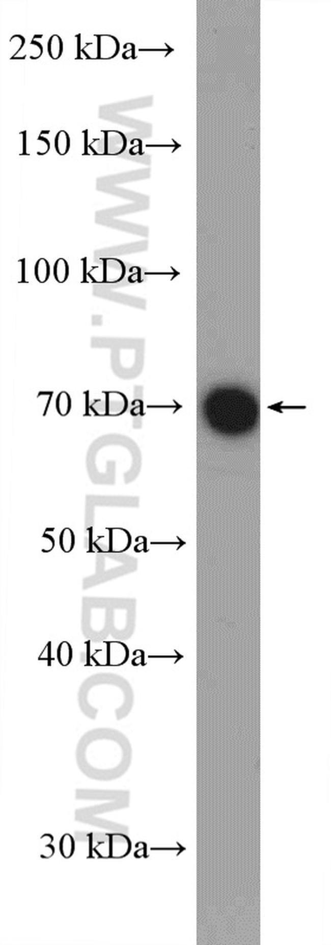 GBP2 Rabbit anti-Human, Mouse, Polyclonal, Proteintech 150 μL; Unconjugated Ver productos