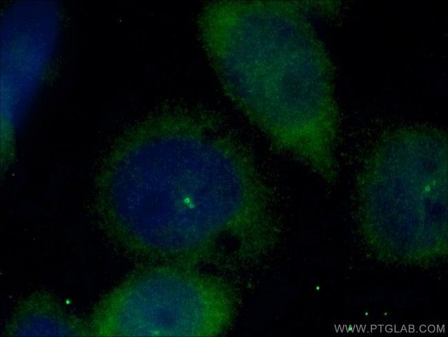 CEP170 Rabbit anti-Human, Polyclonal, Proteintech 20 μL; Unconjugated voir les résultats