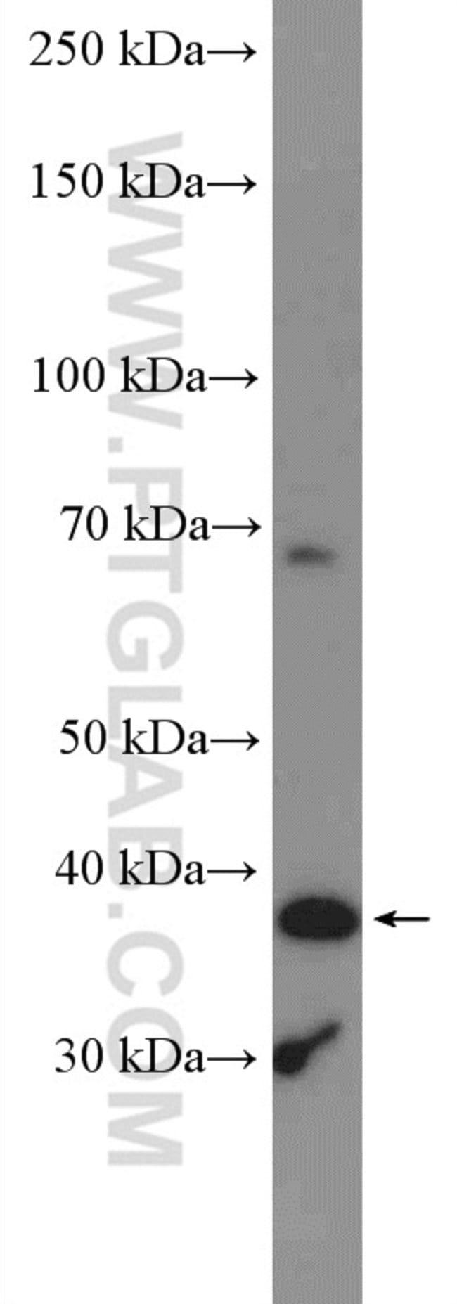ADAL Rabbit anti-Human, Polyclonal, Proteintech 150 μL; Unconjugated Ver productos