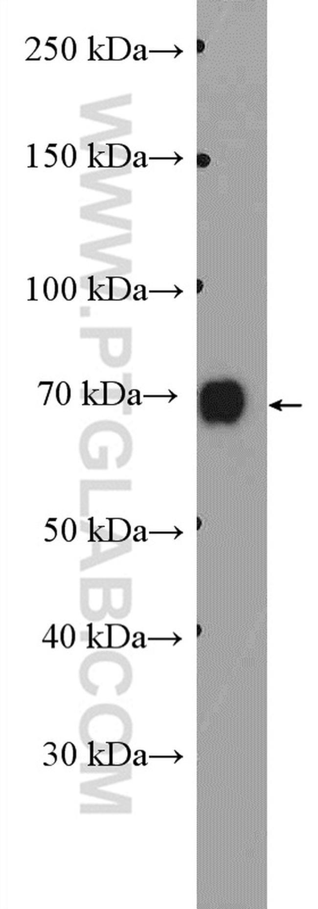 DVL1 Rabbit anti-Human, Mouse, Polyclonal, Proteintech 20 μL; Unconjugated voir les résultats
