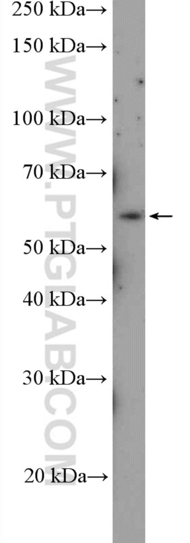 ABI1 Rabbit anti-Human, Polyclonal, Proteintech 150 μL; Unconjugated Ver productos