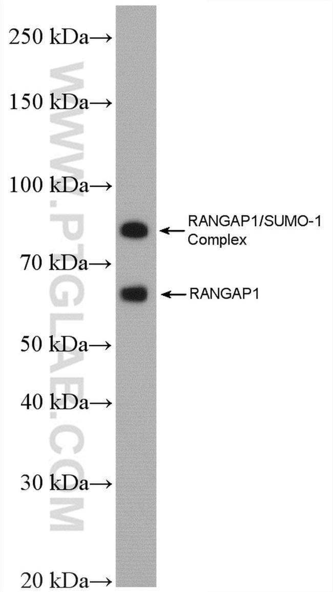 RanGAP1 Rabbit anti-Human, Mouse, Polyclonal, Proteintech 20 μL; Unconjugated Produkte