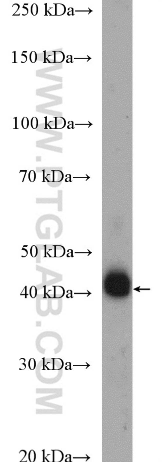 HLA-E Rabbit anti-Human, Polyclonal, Proteintech 150 μL; Unconjugated Ver productos