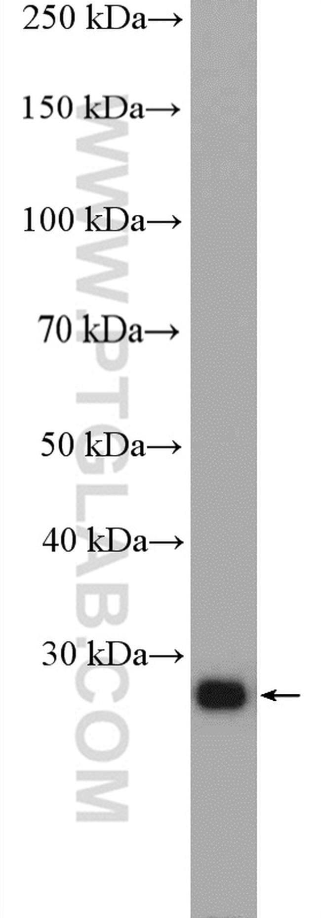 RAB34 Rabbit anti-Human, Polyclonal, Proteintech 150 μL; Unconjugated Ver productos
