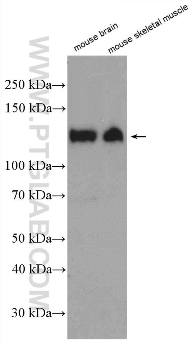 CACNA2D1 Rabbit anti-Human, Mouse, Porcine, Rat, Polyclonal, Proteintech 20 μL; Unconjugated voir les résultats