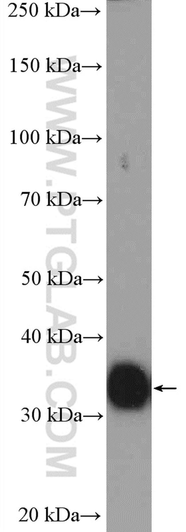 GDF15 Rabbit anti-Human, Mouse, Polyclonal, Proteintech 150 μL; Unconjugated Ver productos