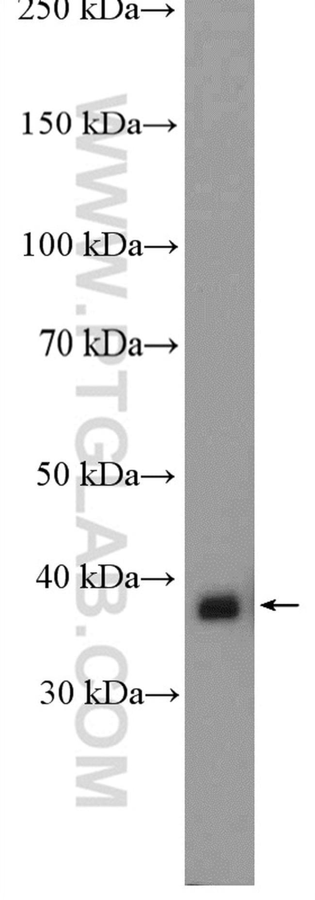 MRPL4 Rabbit anti-Human, Polyclonal, Proteintech 20 μL; Unconjugated Produkte