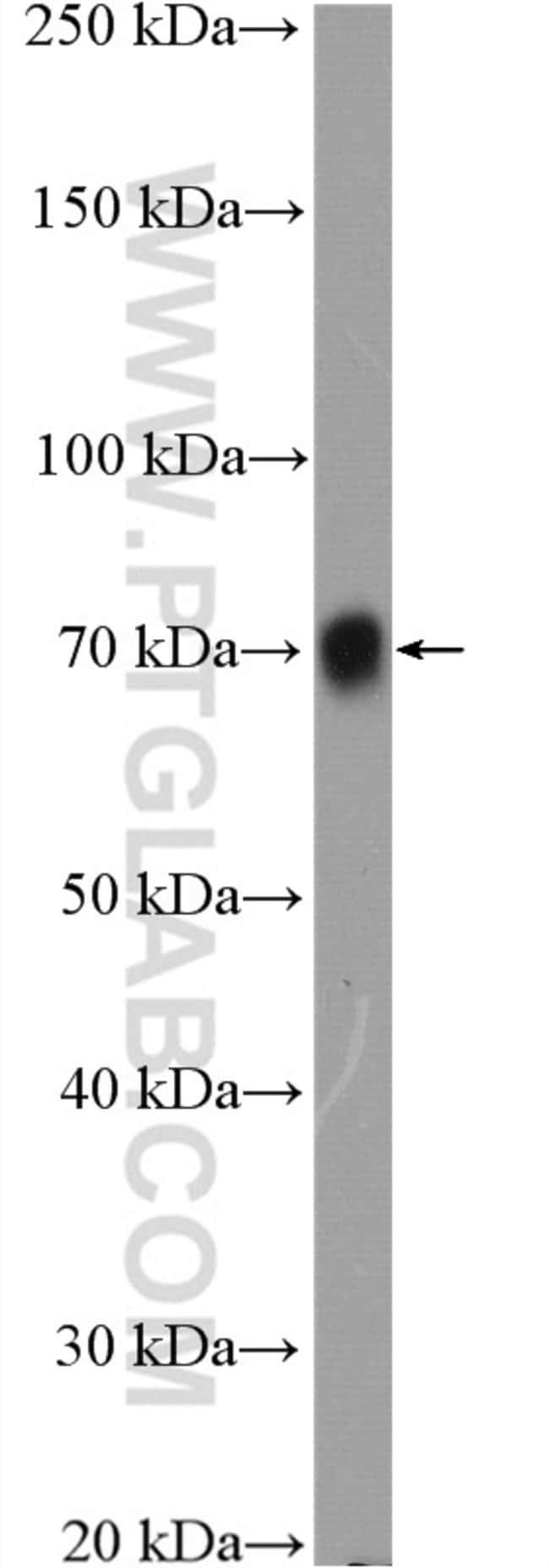 Poliovirus receptor Rabbit anti-Human, Polyclonal, Proteintech 20 μL; Unconjugated voir les résultats