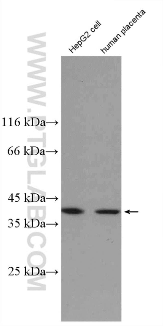 NDNL2 Rabbit anti-Human, Polyclonal, Proteintech 150 μL; Unconjugated Ver productos