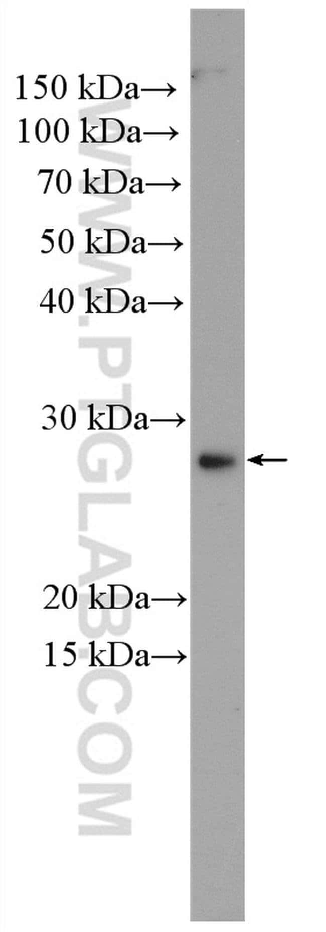 KLK15 Rabbit anti-Human, Polyclonal, Proteintech 150 μL; Unconjugated Ver productos