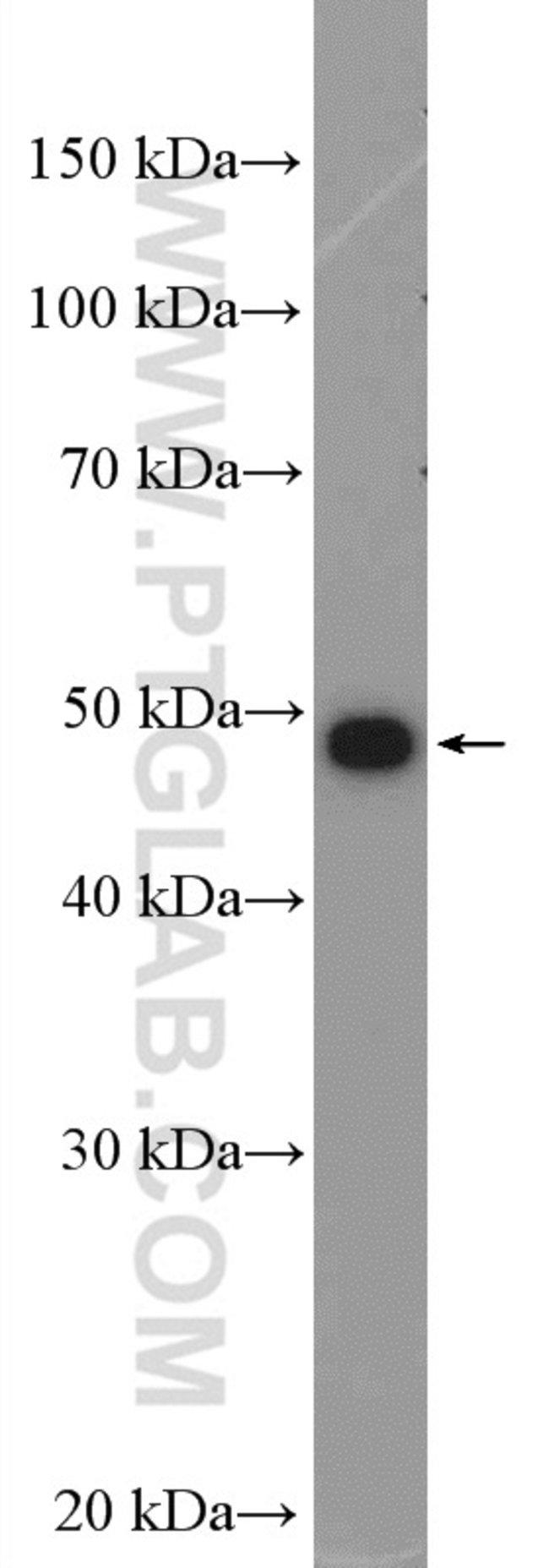 AKD2 Rabbit anti-Human, Polyclonal, Proteintech 20 μL; Unconjugated voir les résultats