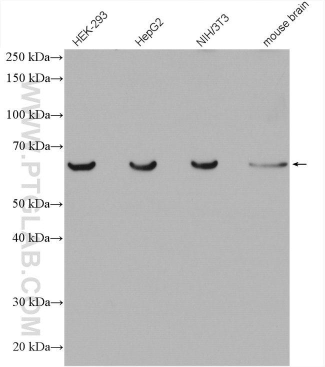 C3orf64 Rabbit anti-Human, Mouse, Polyclonal, Proteintech 20 μL; Unconjugated voir les résultats
