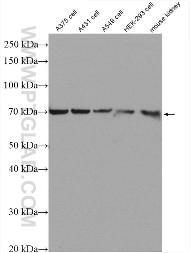 GSDMC Rabbit anti-Human, Mouse, Polyclonal, Proteintech 150 μL; Unconjugated Ver productos