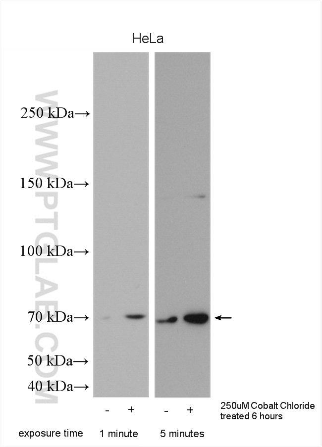 HIF3A Rabbit anti-Human, Polyclonal, Proteintech 20 μL; Unconjugated voir les résultats