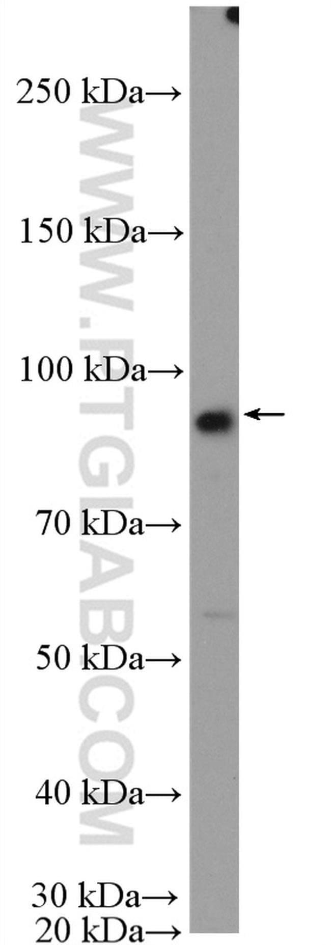 FTSJD2 Rabbit anti-Human, Mouse, Polyclonal, Proteintech 20 μL; Unconjugated voir les résultats