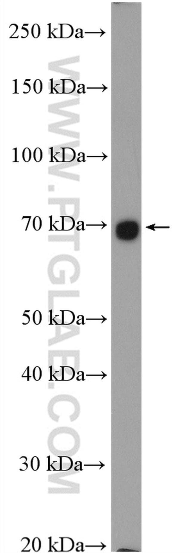 SLC26A2 Rabbit anti-Human, Mouse, Rat, Polyclonal, Proteintech 20 μL; Unconjugated voir les résultats