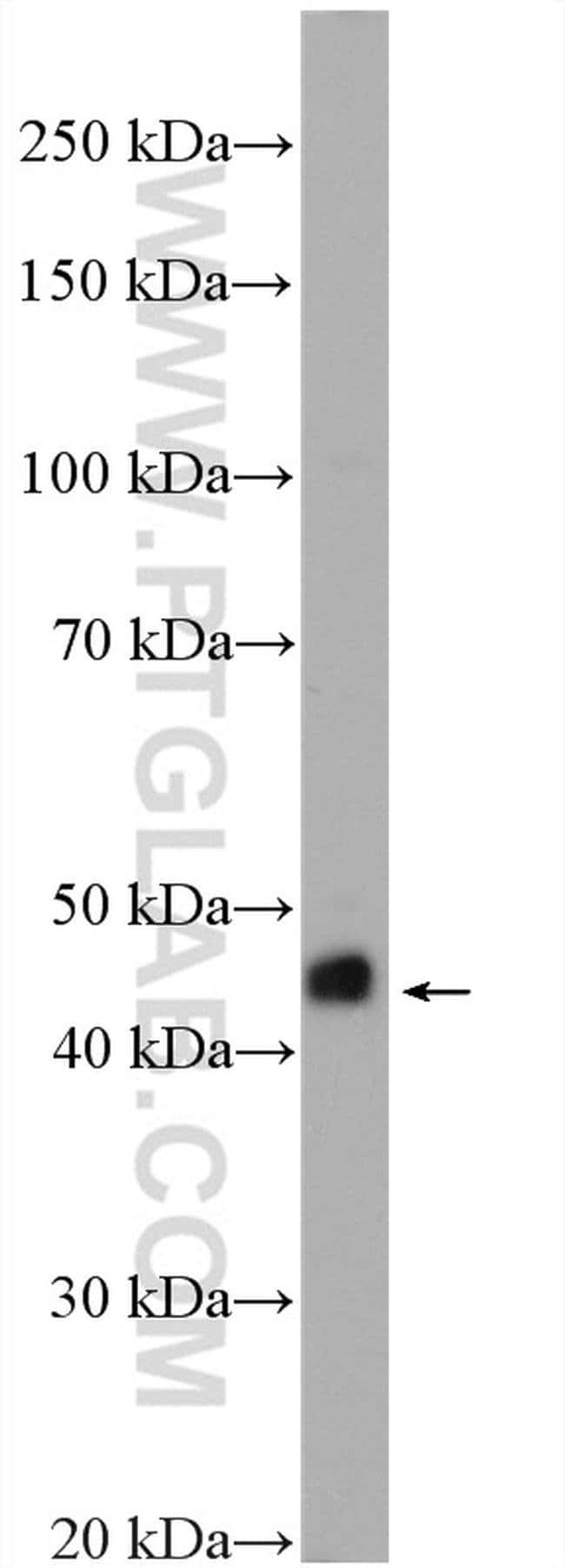 RIC3 Rabbit anti-Human, Mouse, Polyclonal, Proteintech 150 μL; Unconjugated Ver productos