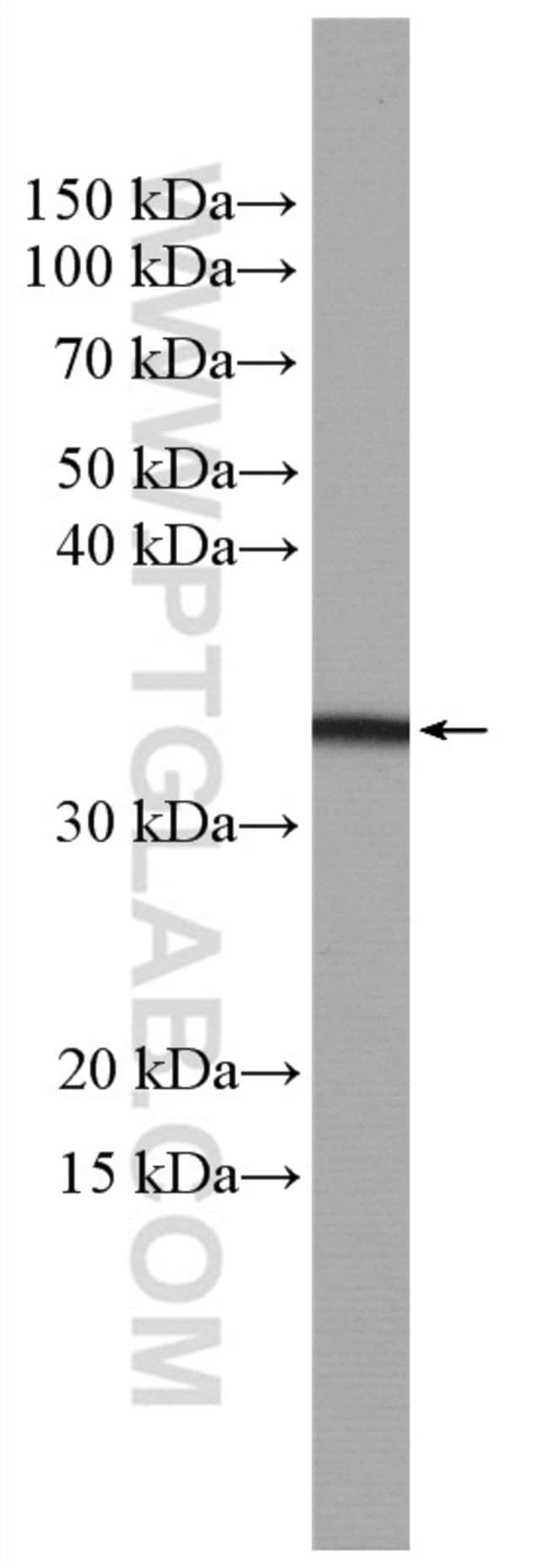 OSM Rabbit anti-Human, Rat, Polyclonal, Proteintech 150 μL; Unconjugated Ver productos