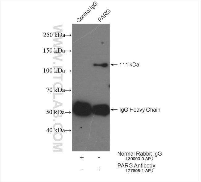PARG Rabbit anti-Human, Polyclonal, Proteintech 150 μL; Unconjugated Ver productos