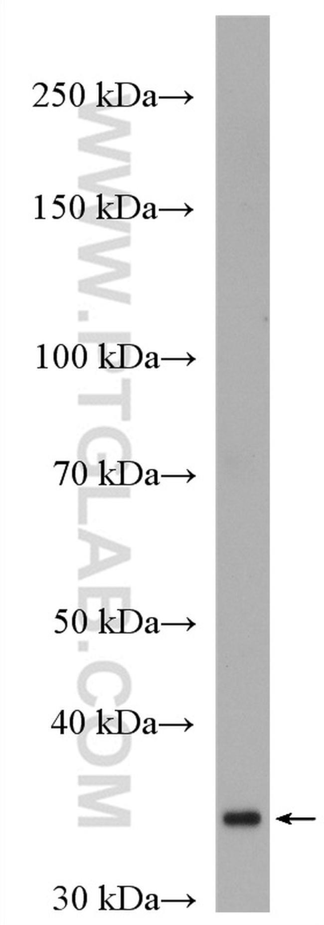 HAPLN2 Rabbit anti-Human, Porcine, Rat, Polyclonal, Proteintech 20 μL; Unconjugated Produkte