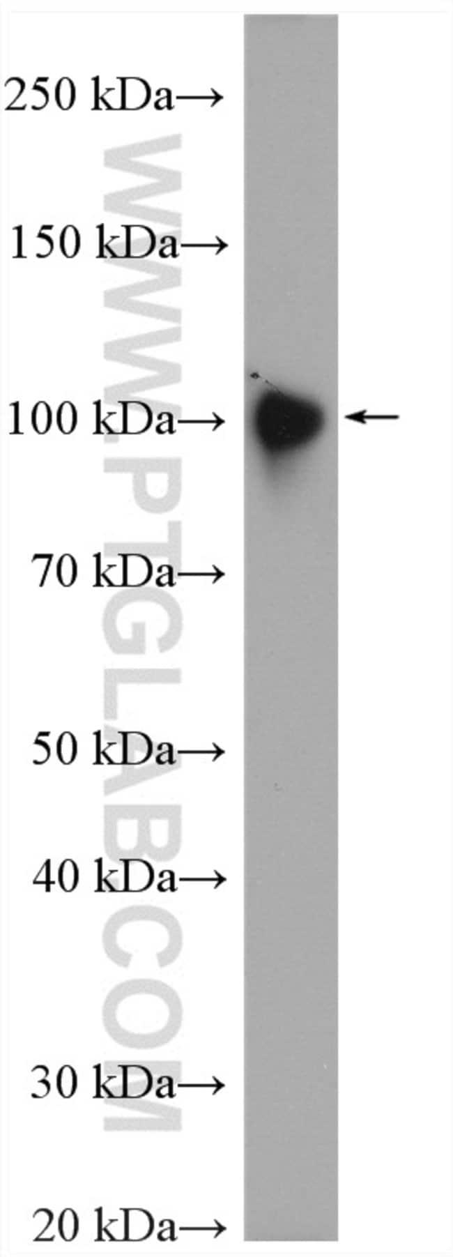 LAMP2 Rabbit anti-Human, Polyclonal, Proteintech 20 μL; Unconjugated voir les résultats