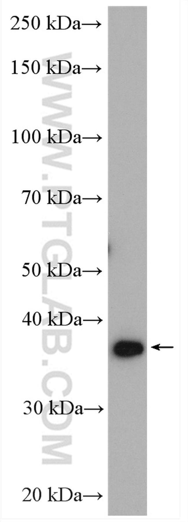 C19orf62 Rabbit anti-Human, Polyclonal, Proteintech 150 μL; Unconjugated Ver productos