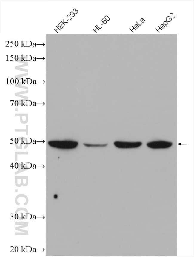 RAD52 Rabbit anti-Human, Polyclonal, Proteintech 150 μL; Unconjugated Ver productos