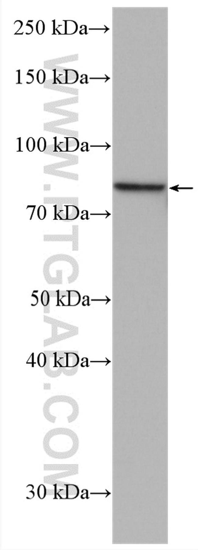 PLEKHH3 Rabbit anti-Human, Mouse, Polyclonal, Proteintech 150 μL; Unconjugated Ver productos