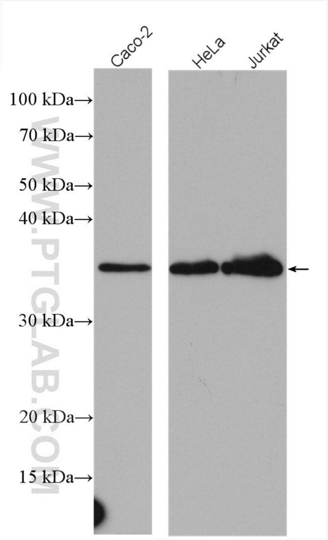 CDC123/C10orf7 Rabbit anti-Human, Polyclonal, Proteintech 150 μL; Unconjugated Ver productos