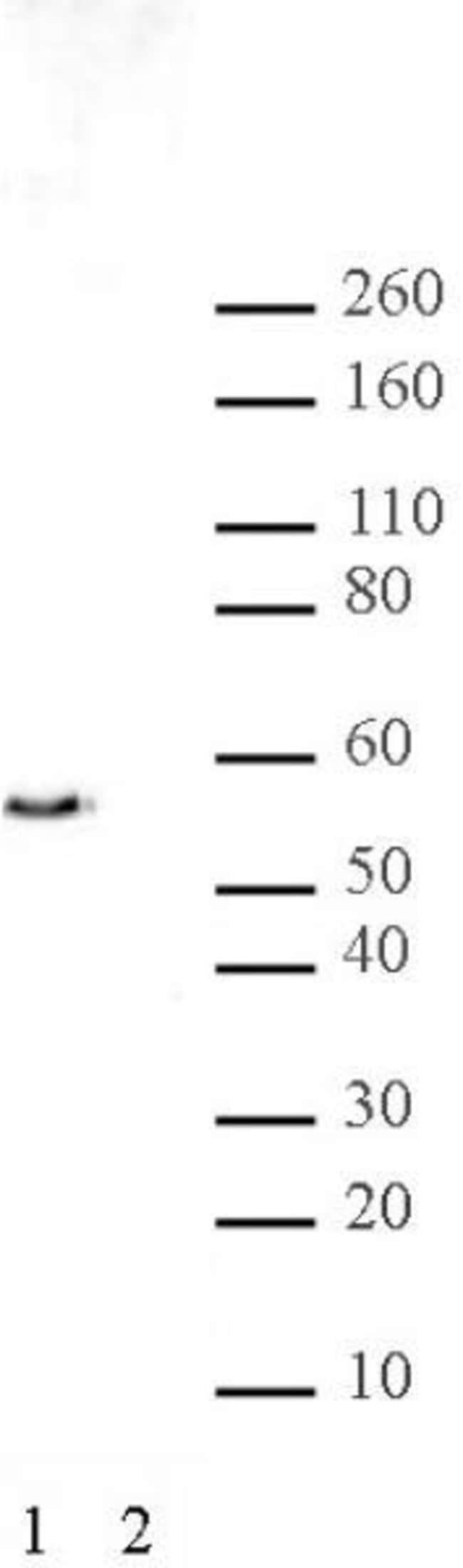 JMJD2D Rabbit anti-Human, Unconjugated, Polyclonal, Active Motif:Antibodies:Primary
