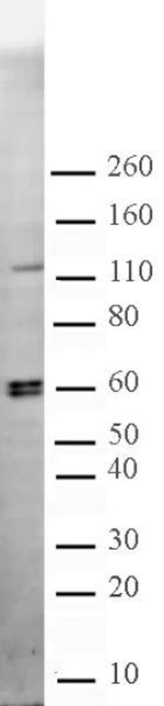 CARM1 Rabbit anti-Human, Mouse, Rat, Unconjugated, Polyclonal, Active Motif:Antibodies:Primary